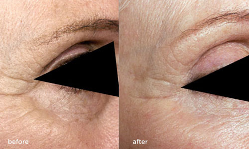 Micro Needling Photos Rejuvenate