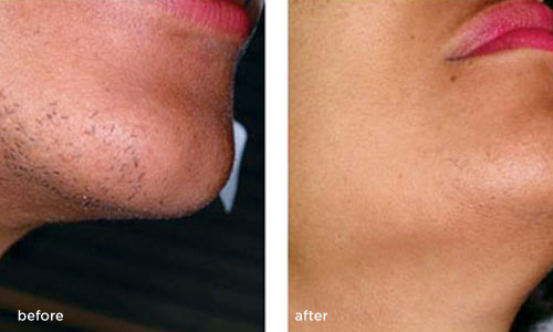 laser-hair-removal-before-after-female 1