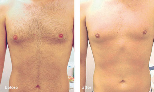 laser-hair-removal-before-after-men1