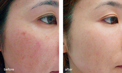 laser-thread-vein-removal Before and after 1