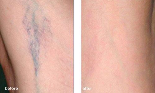 laser-thread-vein-removal B & after 2