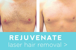 Rejuvenate before and after laser hair removal