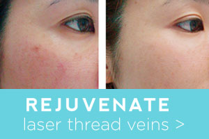Rejuvenate before and after thread veins