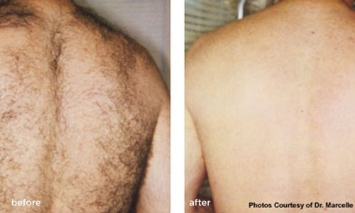 Laser Hair Removal Treatments Before & After Photos